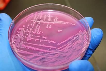 Koli Basili bakterisinden mazot üretildi!